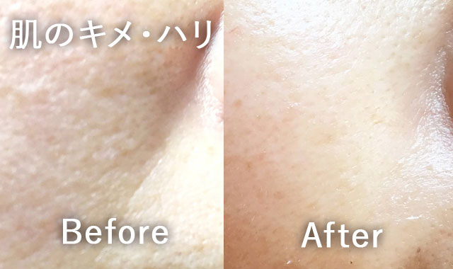 肌のキメ・ハリの変化(ビフォーアフター)