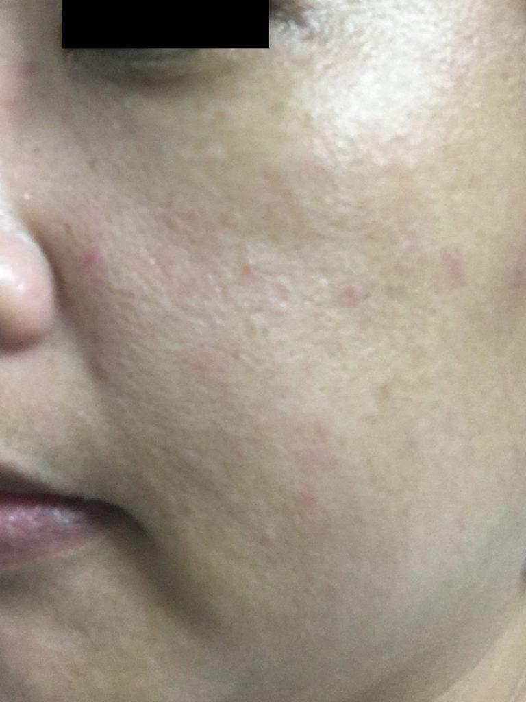 エテルノ美容液【4日使用後の肌の状態2】