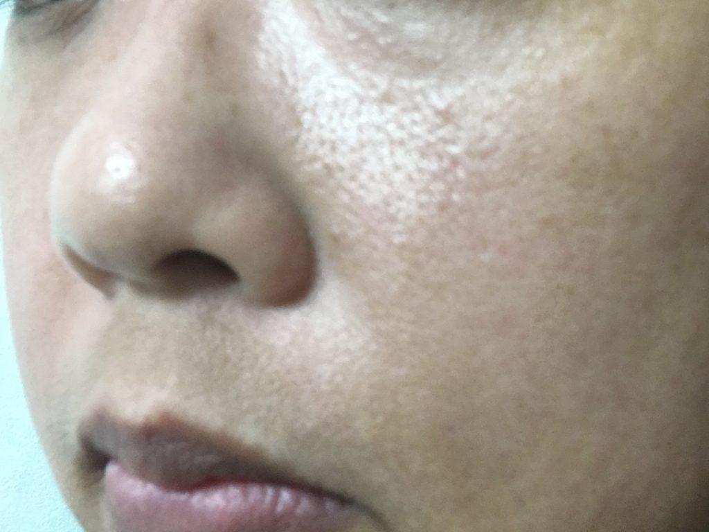 エテルノ美容液【2週間使用後1】