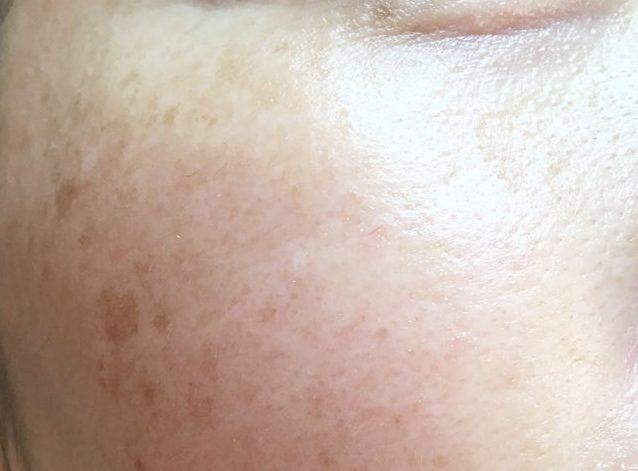 ローヤルゼリーもっちりジェルの使用でワントーン明るくなった肌