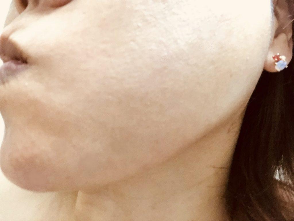 米肌澄肌ホワイトCCクリーム口コミアフター2