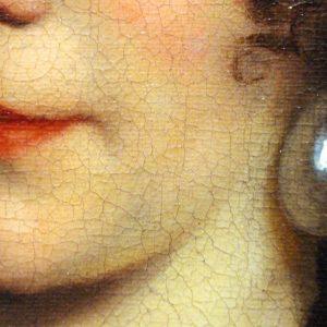 口の周りの乾燥、放置してませんか?効果的な改善法と保湿方法
