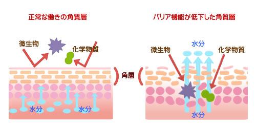 アトピー性皮膚炎と正常な皮膚の角質層の違