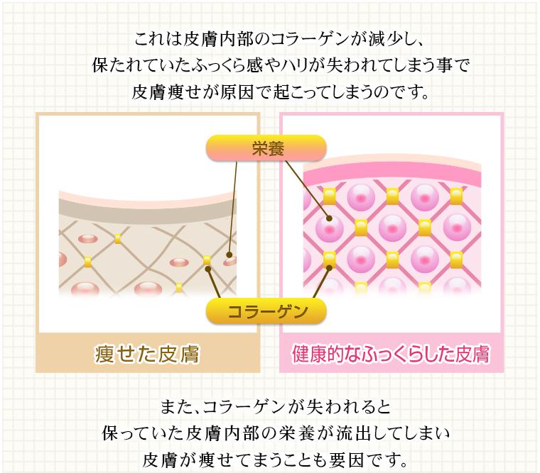 コラーゲン不足による皮膚痩せのメカニズム