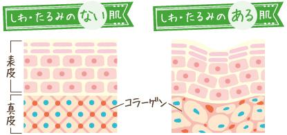 しわ・たるみのある肌ない肌とコラーゲンの関係の図