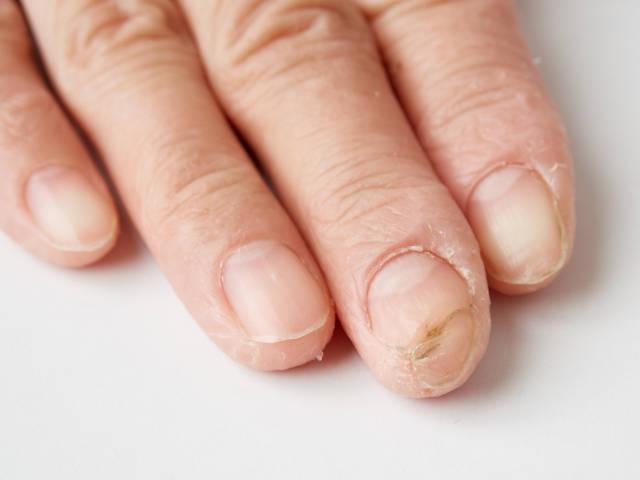 指の皮が剥けた指先