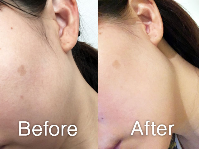一か月キミエホワイトプラスを使用した顔のビフォーアフター