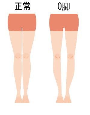 正常な脚とO脚