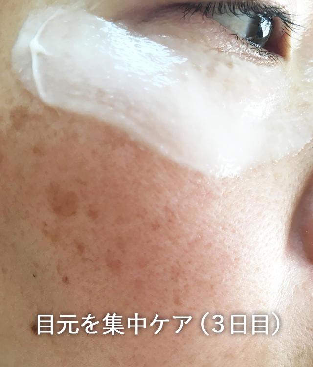 ローヤルゼリーもっちりジェル 目元を集中ケア(3日目)