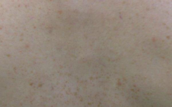 花弁状色素斑