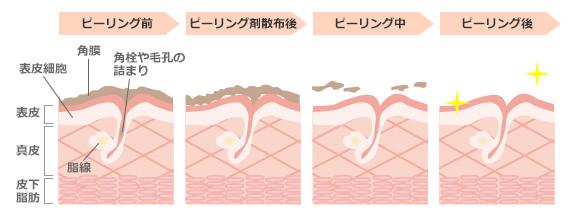 ピーリング過程の皮膚の様子